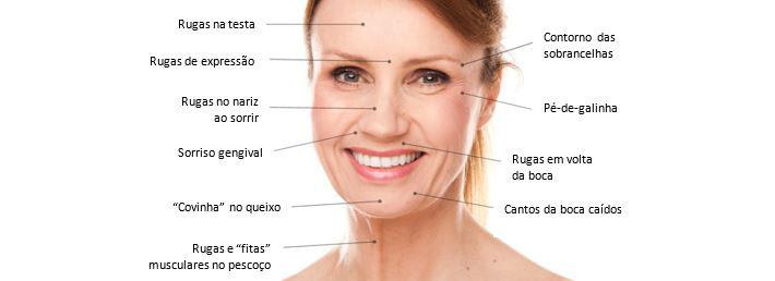 Imagem-Botox